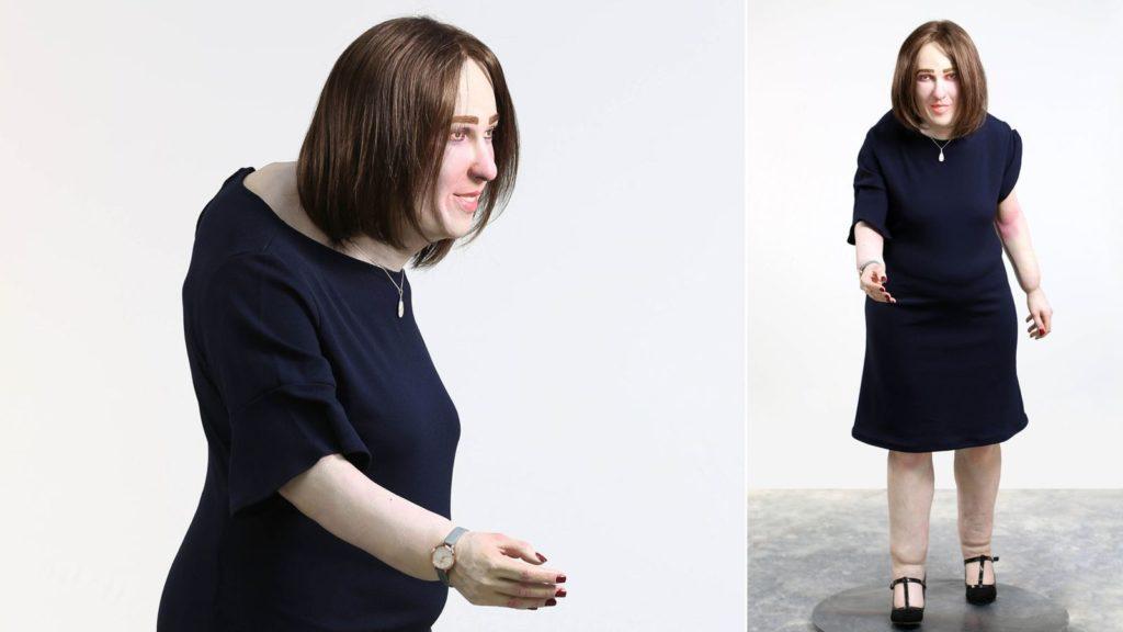 emma posture model